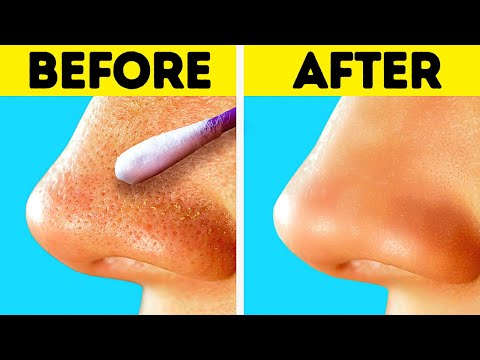 HOW TO GET RID OF BLACKHEADS  Clear Skin Tips And Tricks