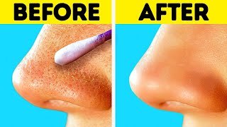 HOW TO GET RID OF BLACKHEADS || Clear Skin Tips And Tricks