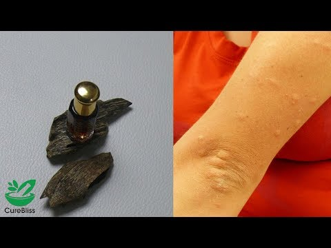 5-benefits-of-agarwood-oil-|-natural-home-remedies