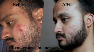 how to remove acne within 7 to 8 days -{hindi} acne ko kese dur karey..