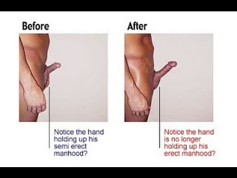 Natural penis enlargenment, How to enlarge your penis 1 inch in two weeks