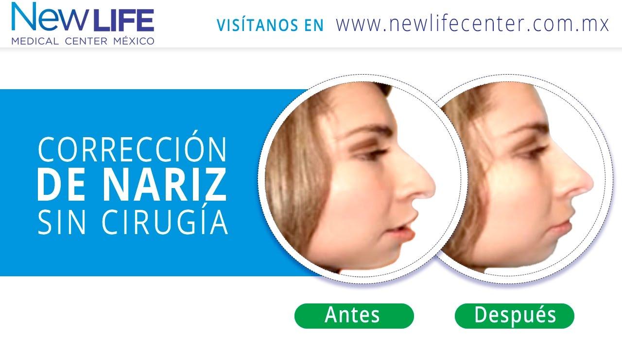 Como quitar la nariz aguilena sin cirugia