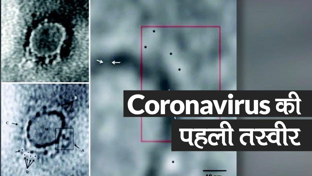 Indian Scientists ने पहली बार जारी की Coronavirus की Microscopic Image - Watch Video