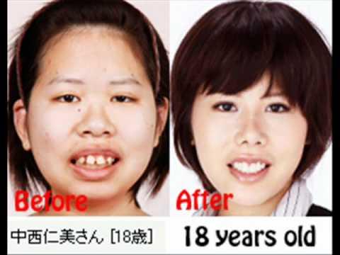 Asian male plastic surgery - houmulch.com