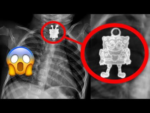 11 erstaunliche Dinge die im menschlichen Körper gefunden wurden