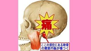 顎関節症の原因と治し方・治療についての説明。ストレッチをするな!びっくりオオオォォォ-!悪化するぞ!この顎関節症の治療で症状が改善します。【即効センター】