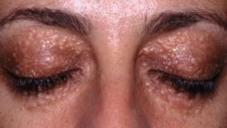 DermTV - Syringomas: White Hard Bumps Under Your Eyes [DermTV.com Epi #224]