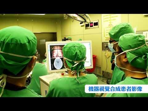 全台首例!腦部導航手術人體試驗