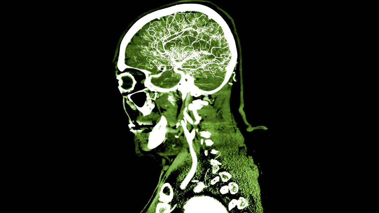 A TikToker Chugged 8 Scoops PreWorkout Supplement. This Is What Happened To His Brain.