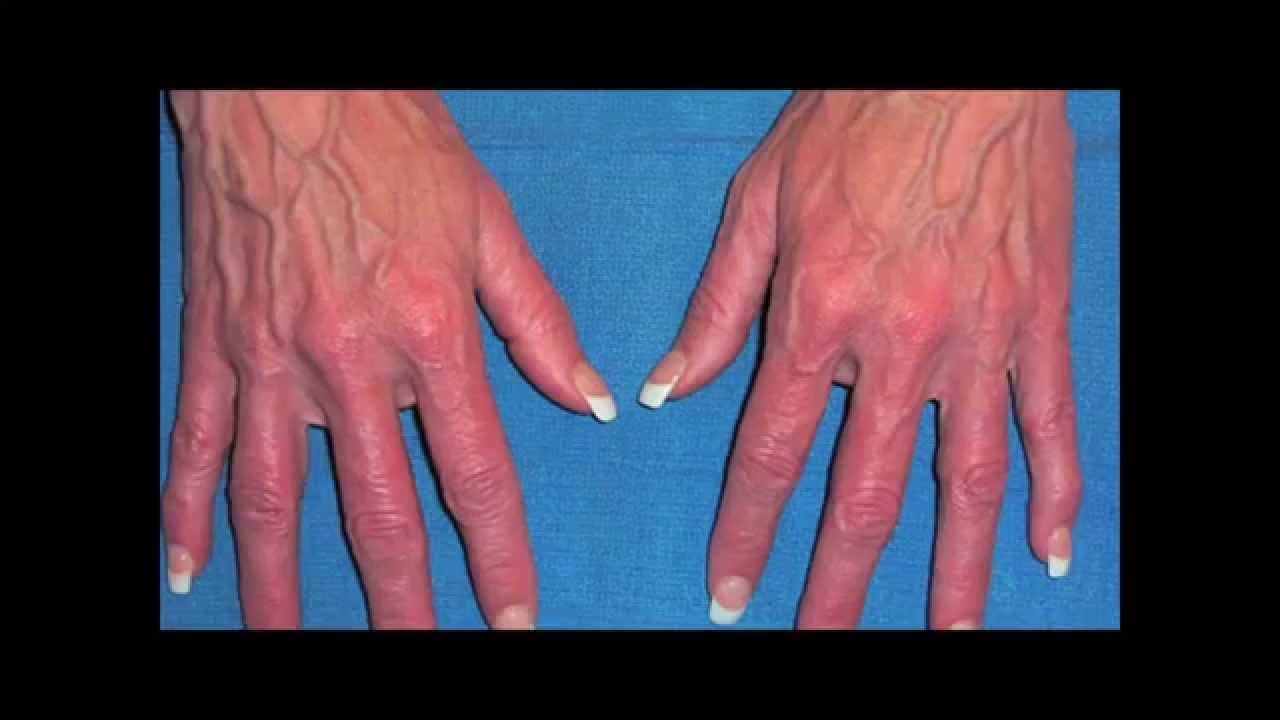 reduce veins on hands