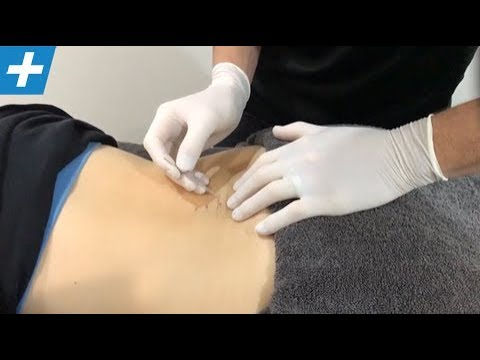 Dry Needling For Lumbar + Cervical Spinal Muscles | No.205 | Physio REHAB