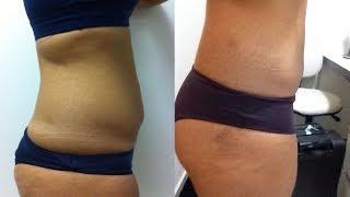 CRIOLIPOLISE: gordura localizada!