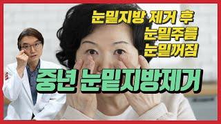 눈밑지방제거 후 눈밑주름 눈밑꺼짐 눈꺼풀지방 치료 방법…