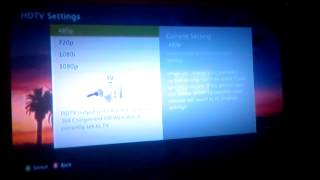 Xbox 360 resolution problems: HD Component AV cable??