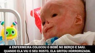 A enfermeira colocou o bebê no berço e saiu. Quando ela viu o seu rosto, gritou horrorizada.