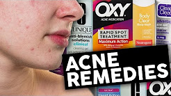hqdefault - What Are The Best Over Counter Acne Products