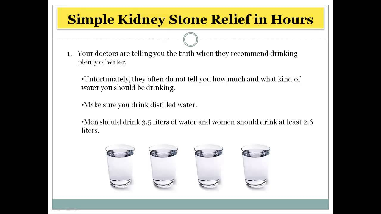 How to pass a Kidney Stone within 1 day - YouTube