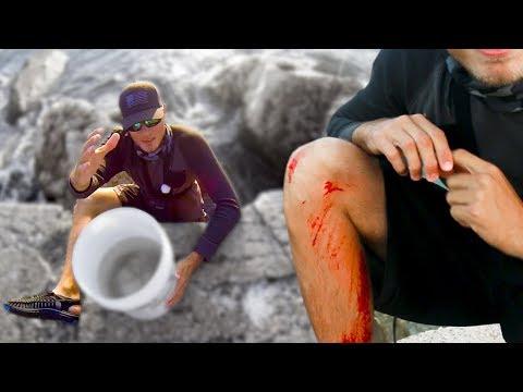 Worst Fishing Accident Fishing For Shark Bait