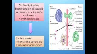 fisiopatología meningitis