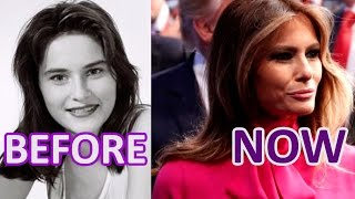 Melania #TRUMP.  BEFORE and NOW
