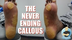 EXTREME UNBELIEVABLE NEVER ENDING THICKEST FOOT CALLUS/CALLOUS REMOVAL