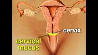 How To Control Birth - Intra Uterine Devices (IUDs)