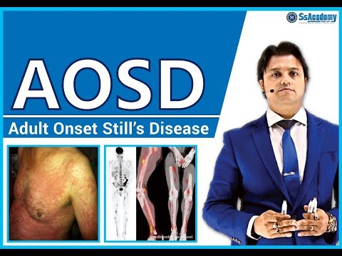 AOSD (Adult Onset Still's Disease) - Best Lecture for MRCP-2, MRCPCH