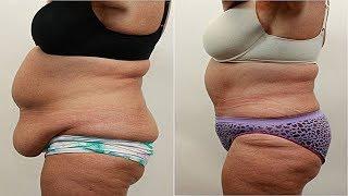 Диета для похудения на 7 дней уберёт 5 кг если кушать...