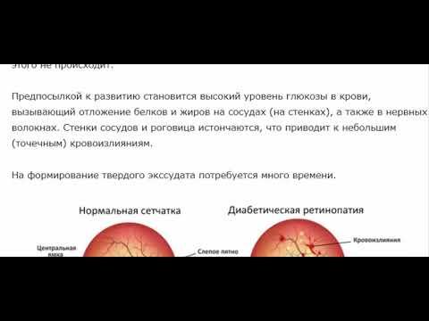 Диабетическая ретинопатия - что это означает