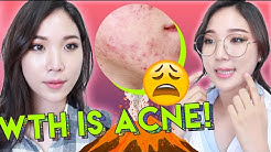 hqdefault - Stearic Acid And Acne