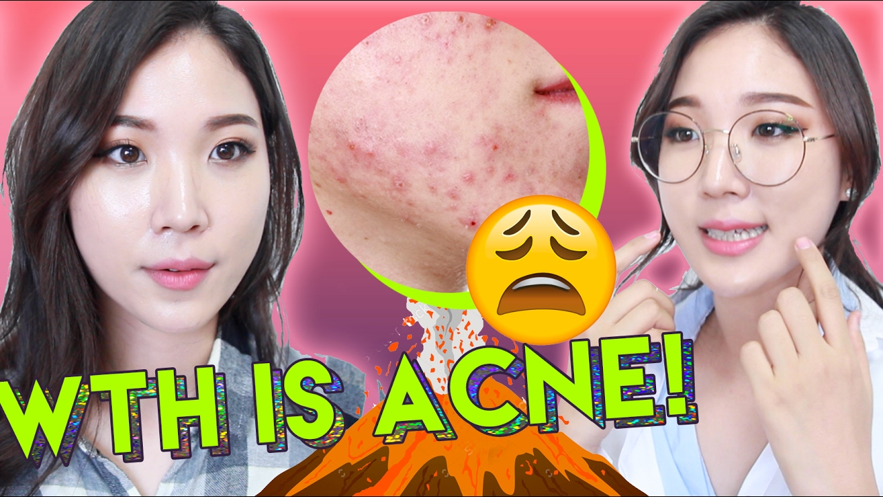 ? What Is Acne and How To Treat Acne with Skincare Products ? Liah Yoo