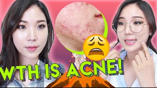 😫 What Is Acne and How To Treat Acne with Skincare Products 🌴 Liah Yoo