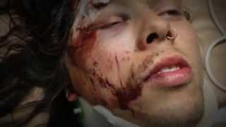 SKULL FIST Zach Slaughter breaking neck skateboarding