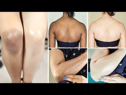 Whitening Dark Body Parts at Home | How to Lighten Dark Elbows, Knees or Neck