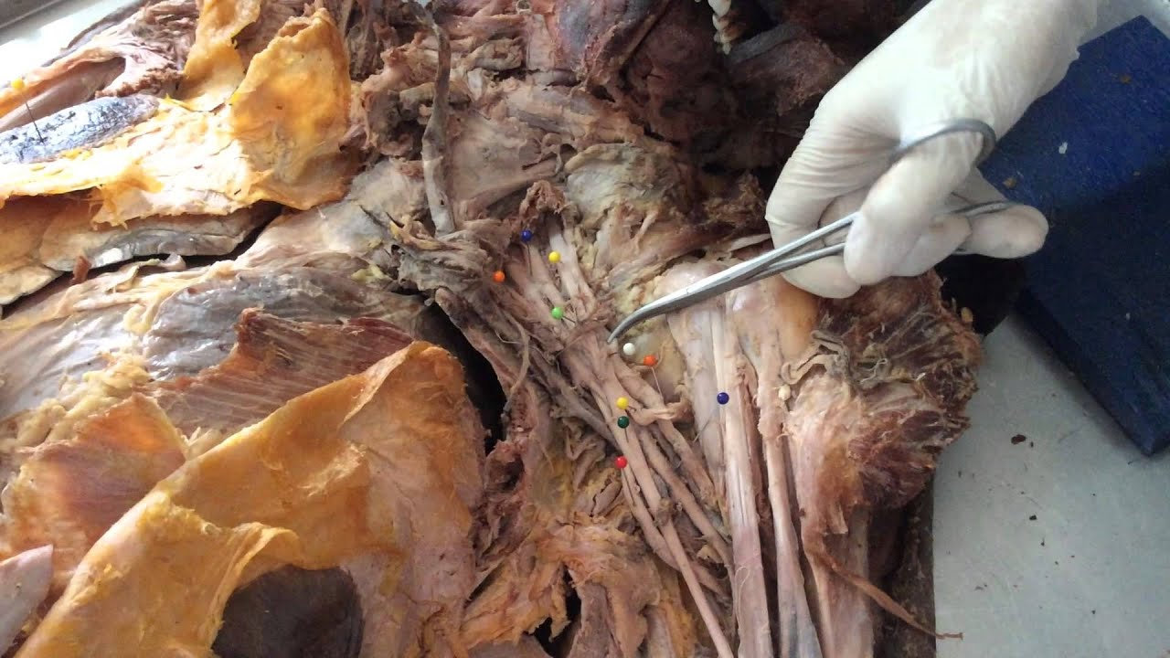 Dissection Axilla - YouTube