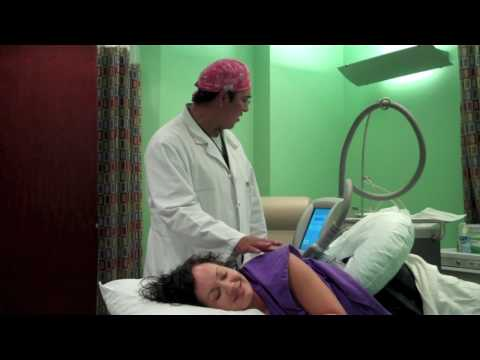 CoolSculpting: Zeltiq Diaries Part III—Aesthetic Enhancements