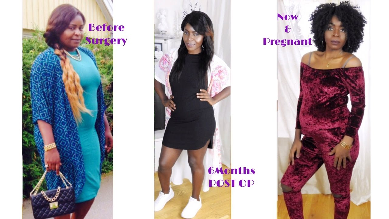 1 Year Post Op Gastric Bypass Surgiversary Update Pregnant Full