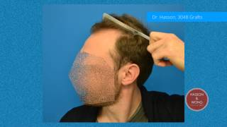 Hasson and Wong Hair Transplant Result