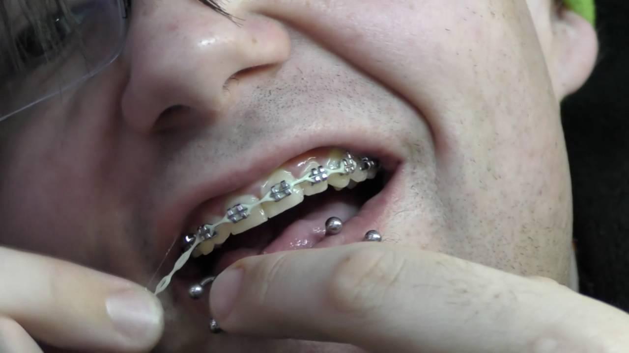 Braces Maintenance: Glow in the dark ligatures, chains, and elastics ...