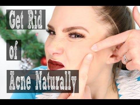 How to Clear Up Acne Without Medication!!...