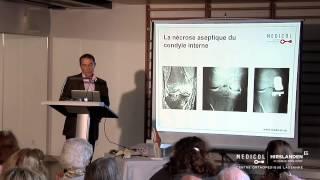 «La prothèse du genou dans tous ses états»  - Clinique Bois-Cerf