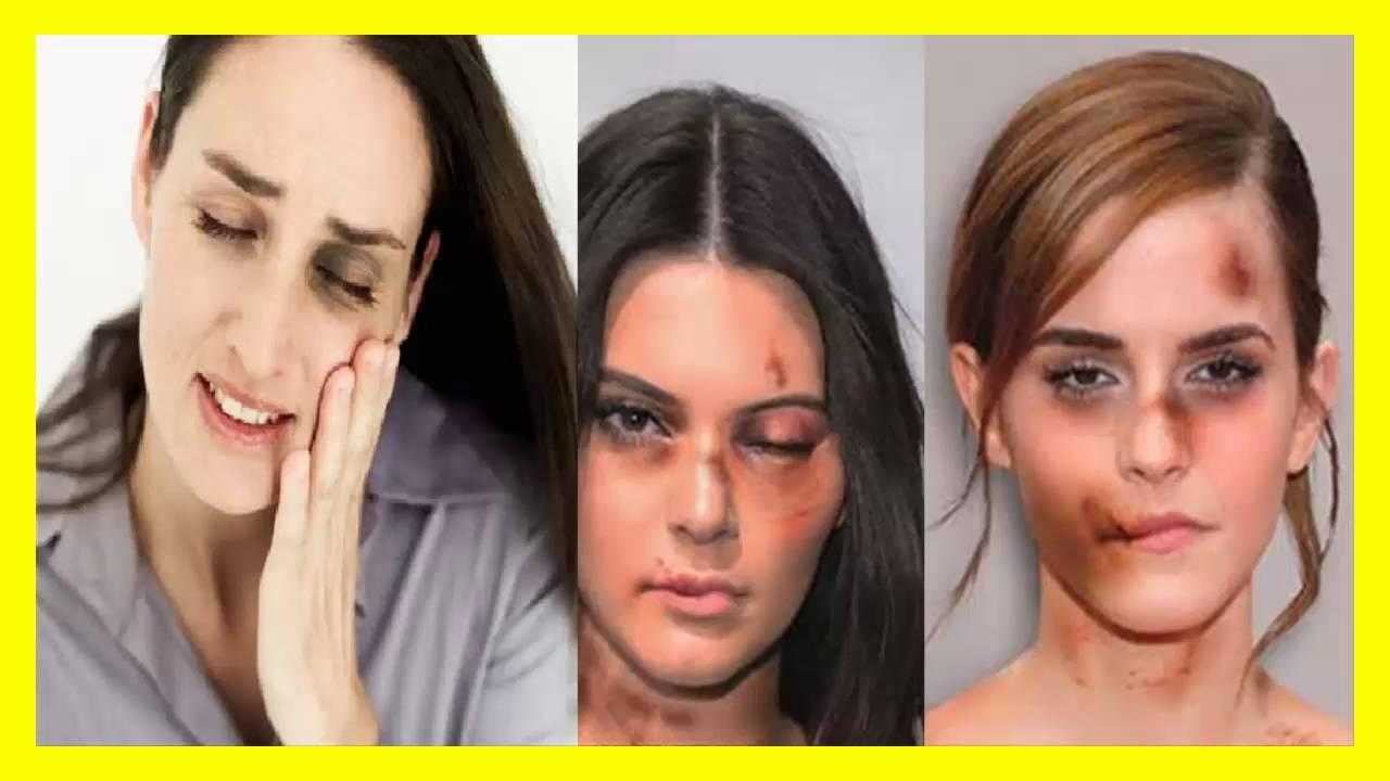 Remedios caseros para golpes y moretones en los ojos