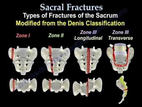Sacral Fractures - Everything You Need To Know - Dr. Nabil Ebraheim