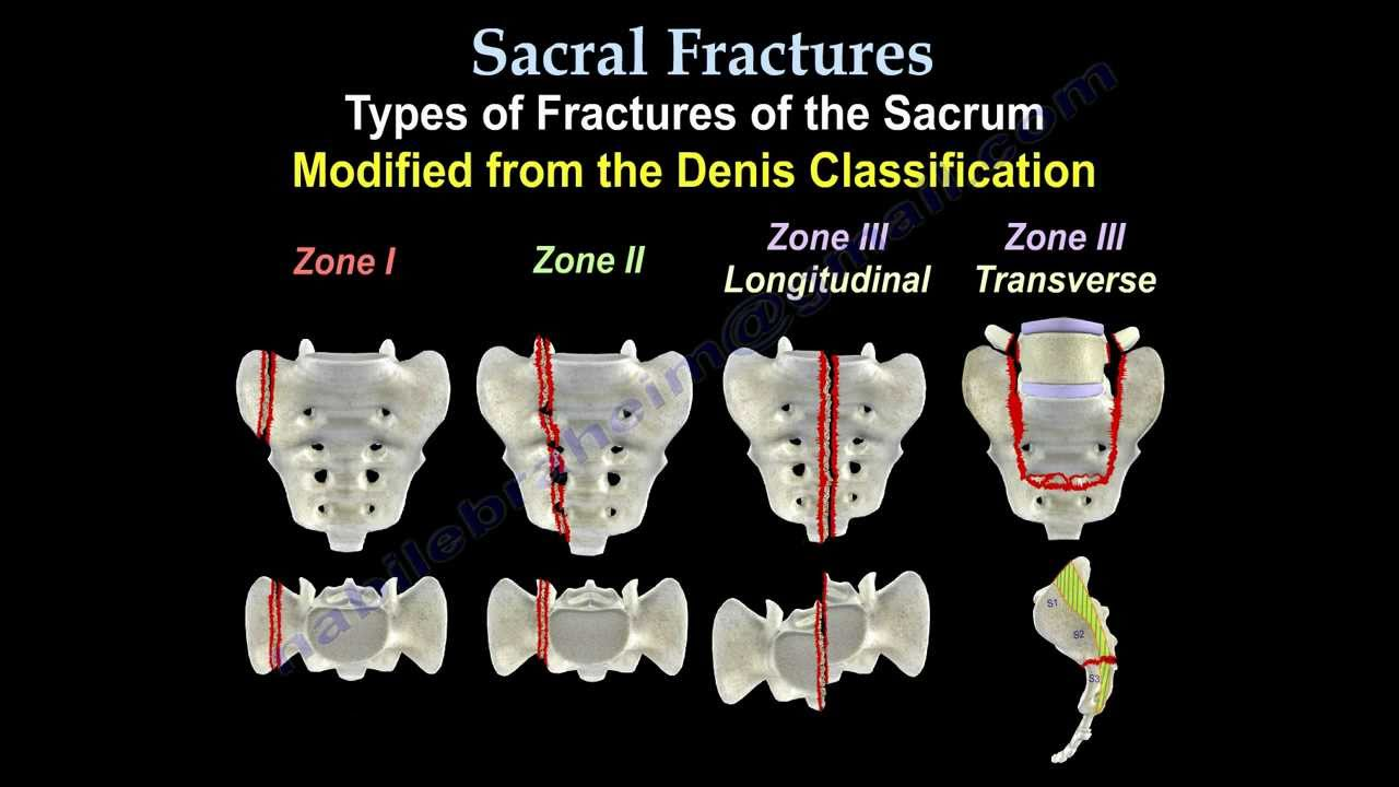 Sacral Fractures Everything You Need To Know Dr Nabil Ebraheim