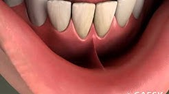 Oral Conditions Frenectomy