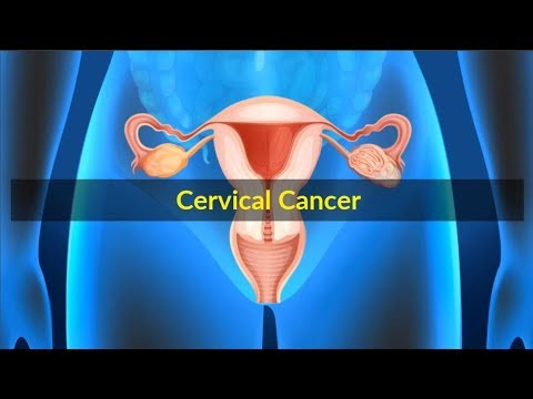 Cervical Cancer Symptoms –Causes symptoms and pictures of Cervical Cancer Stages in women
