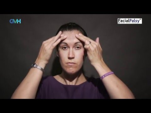 In this video we'll discuss face paralysis condition which is known asIn this video we'll discuss fa.