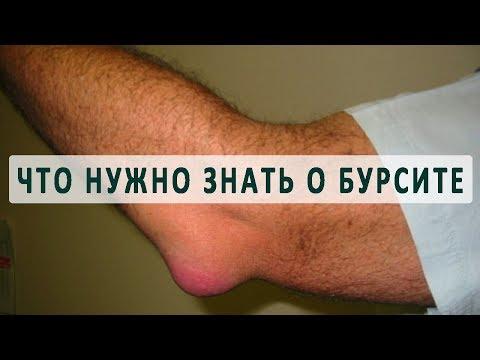 Причины, симптомы и лечение бурсита
