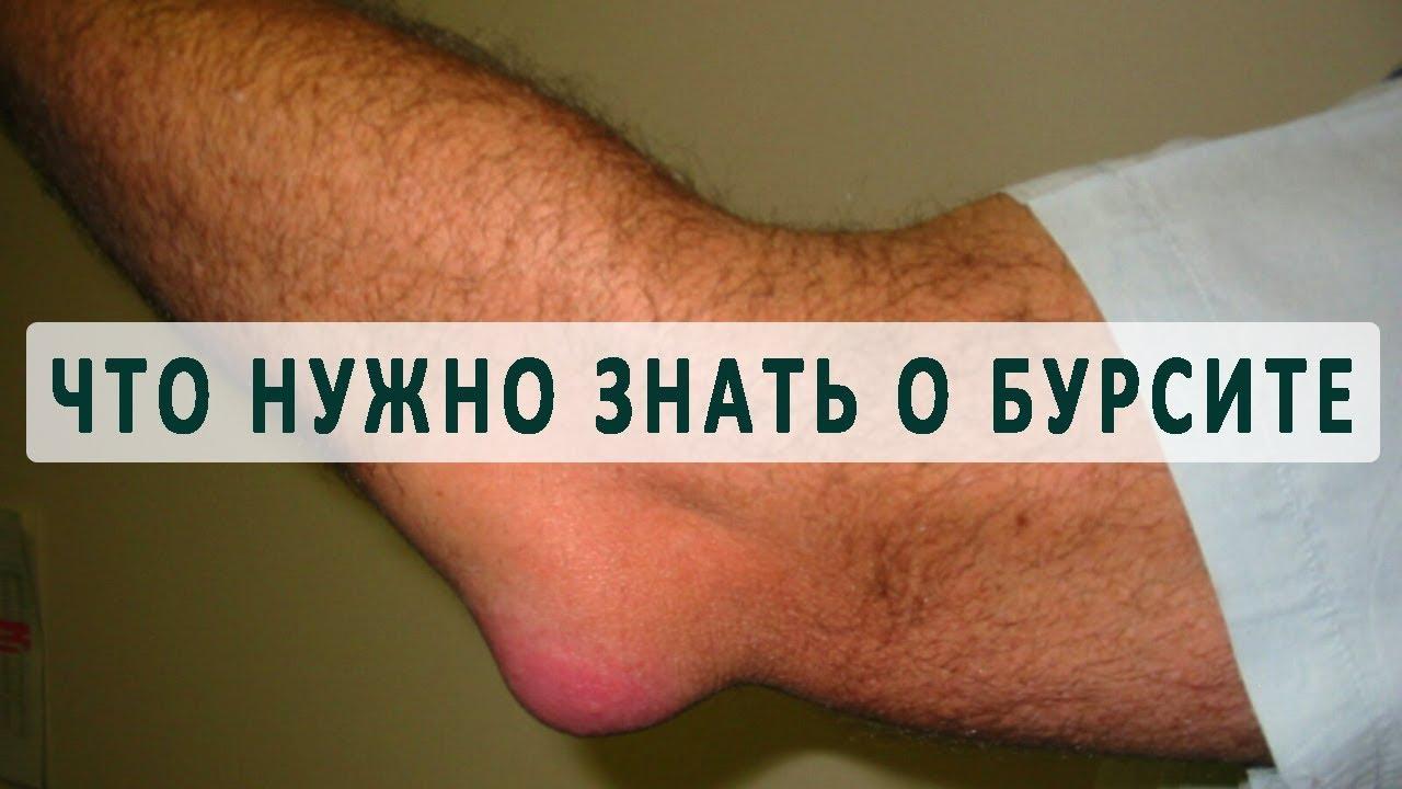 Лечения ревматоидного артрита плечевых суставов