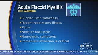 CDC Warns Parents To Be On Lookout For Acute Flaccid Myelitis In Children
